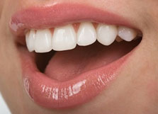 5 Home Remedies You Would Never Think To Use For Teeth Whitening Green Dental