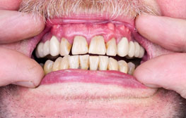 Types of Gum Disease (Periodontal Disease): Gingivitis and Periodontitis