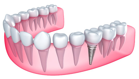 Dental Implants in Broomfield and Aurora, Colorado
