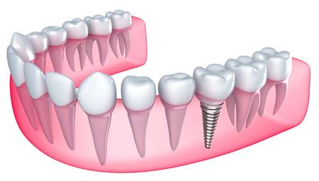 Dental Implants in Broomfield, Colorado